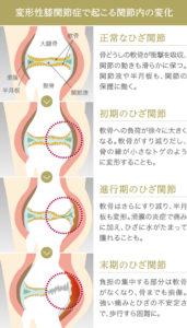 膝の痛み 変形性